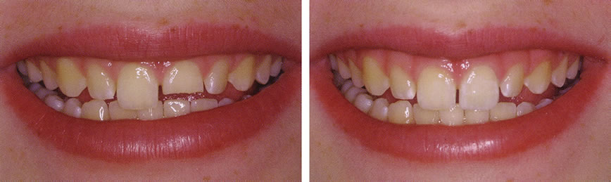 Before and After Dental Bonding Photo