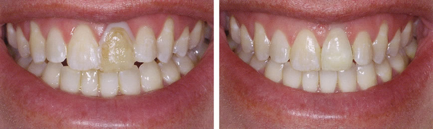 Before and After Porcelain Crowns Photo