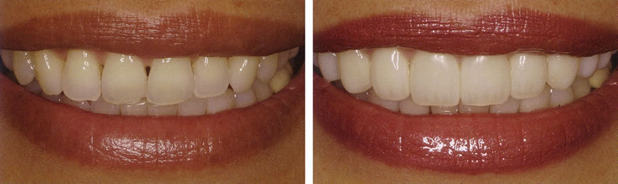 Before and After Veneers Photo